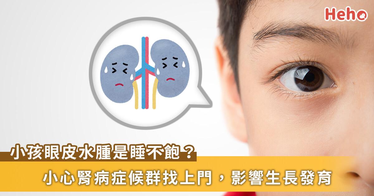 20210628_小朋友眼皮腫誤認沒睡飽!小心腎病症侯群來敲門