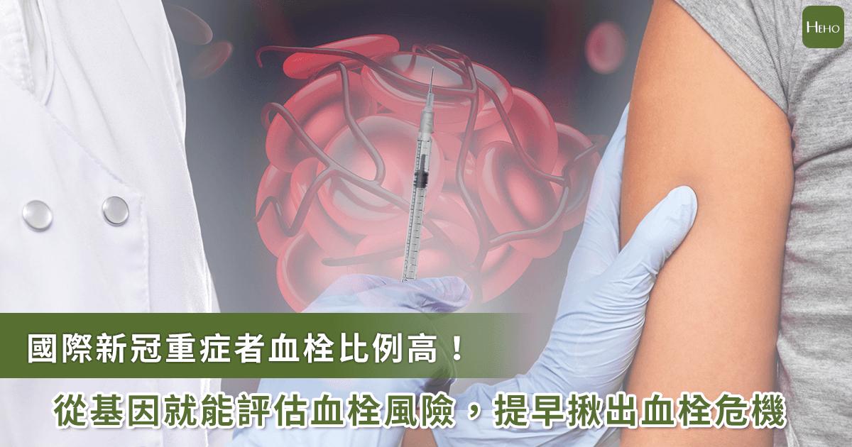 全球新冠重症者血栓比例高!台灣研究超過4成受試者有FGA凝血基因缺陷為警訊