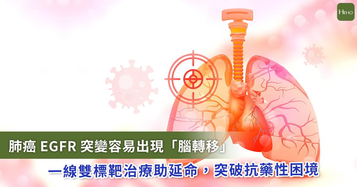 20210719_EGFR肺癌「腦轉移」機率高!雙標靶一線治療突破抗藥性困境