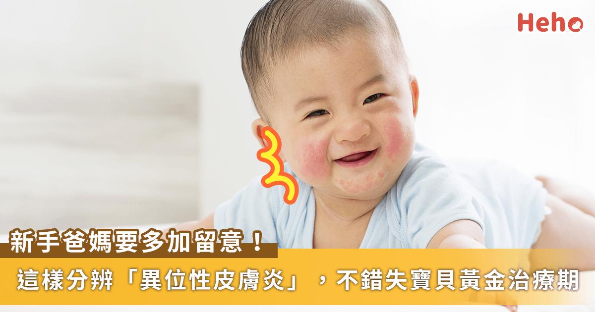 0722-寶寶_皮膚炎