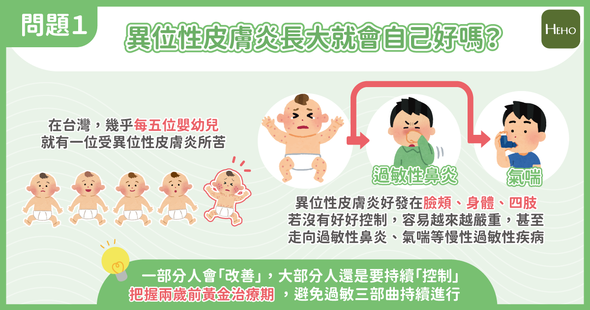 嬰幼兒異位性皮膚炎醫師詳解 4 觀念!外用藥膏以不含類固醇、質地清爽為首選