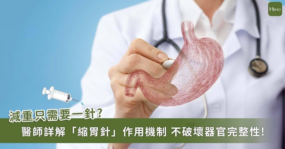 「縮胃針」真的能「縮胃」嗎?醫師詳解「胃肉毒桿菌注射」的作用機制、恢復期、副作用、費用