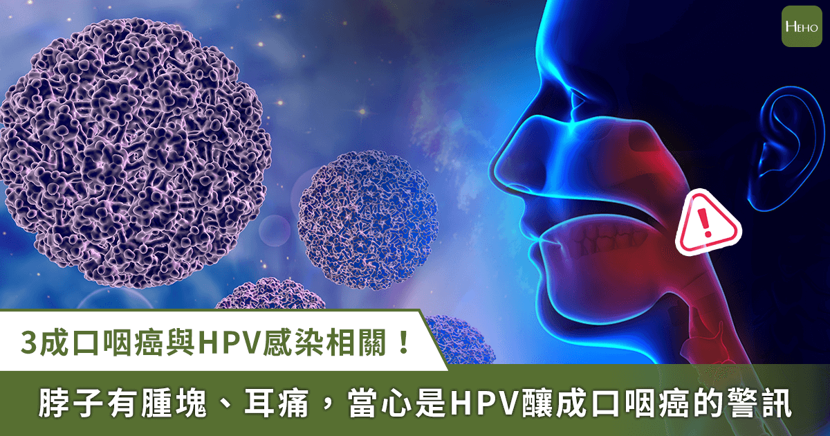 0928_HPV_口咽癌