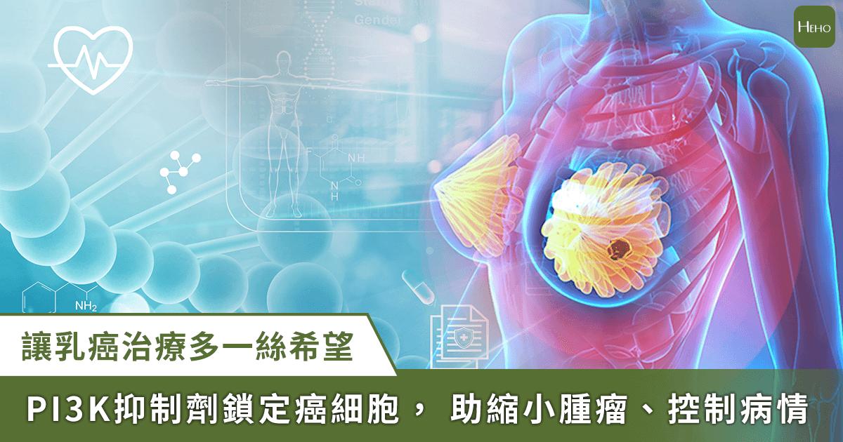 0923_乳癌_基因檢測